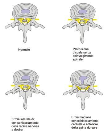 Trattamento di una spina dorsale in elettronica ospedaliera Voronezh