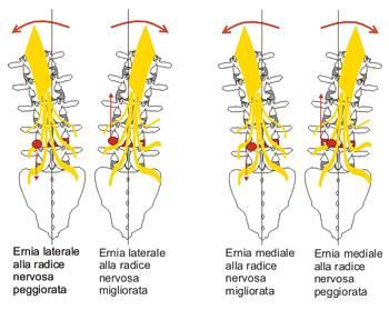 Rimedi di gente per trattamento di una sporgenza di una spina dorsale